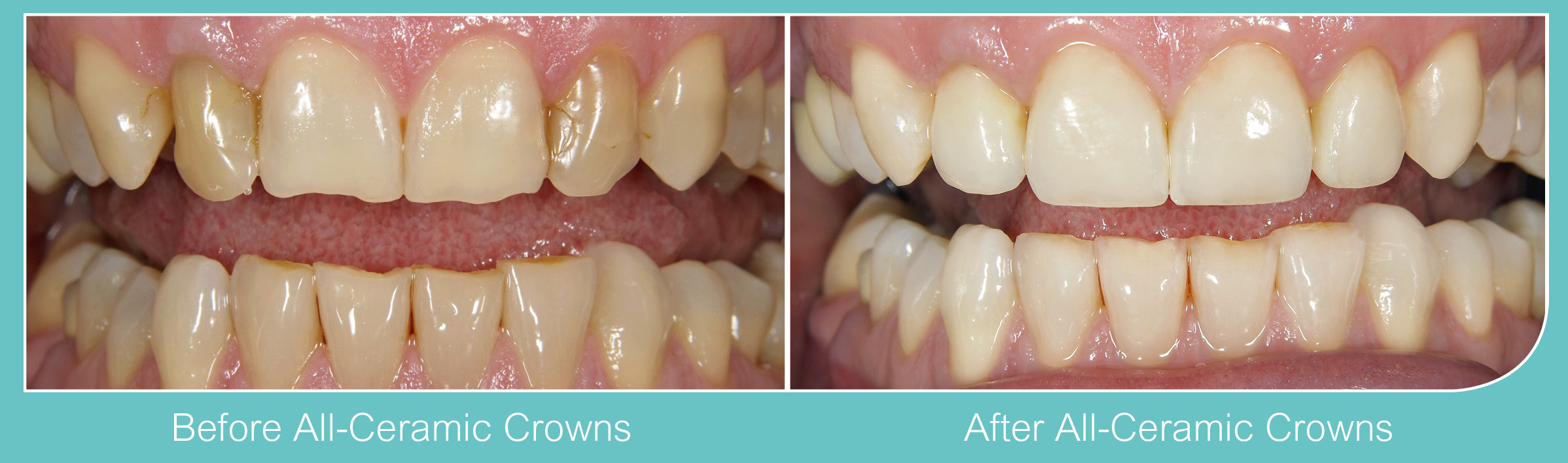 All Ceramic Crowns Dentist London