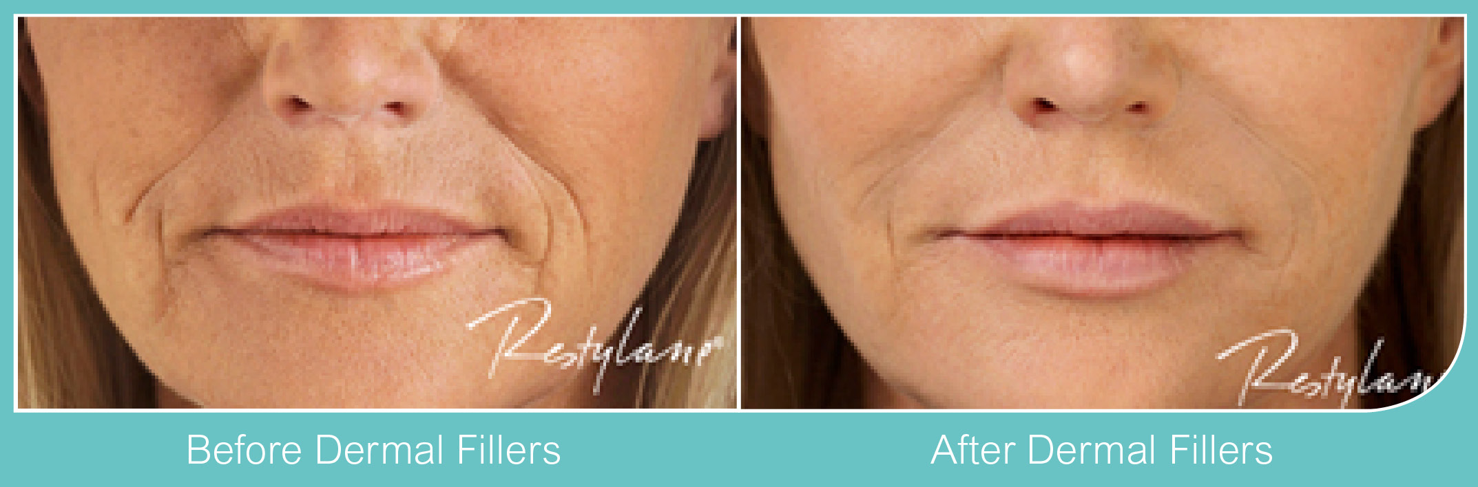 Dermal Fillers Lip Fillers Acton, Chiswick, London