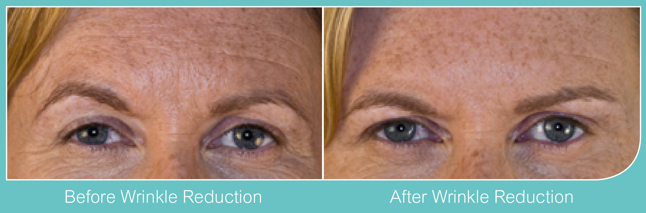 Botox Wrinkle Reduction Acton, Chiswick, London