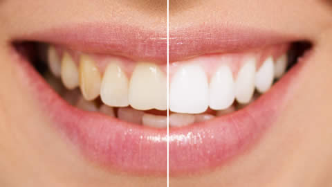 Tooth whitening special offer